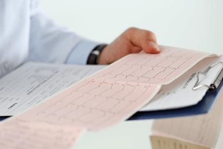Medico legge un elettrocardiogramma