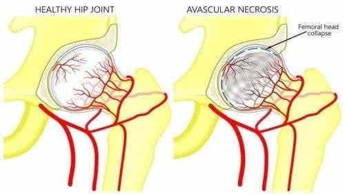 Necrosi avascolare del femore: sintomi e trattamento