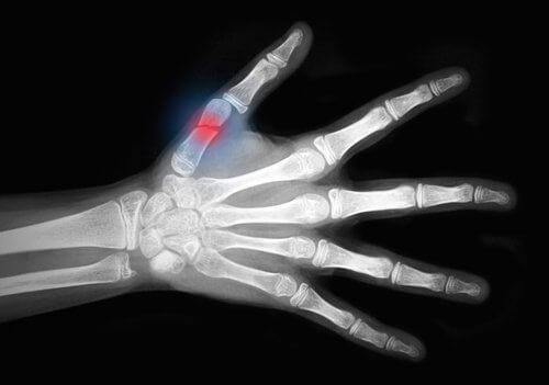 Radiografia con frattura al pollice
