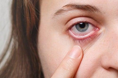 Infezione oculare: rimedi per calmare i sintomi