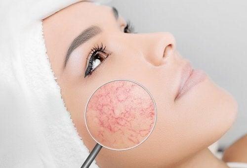 Acne rosacea: cosmetici e abitudini da evitare