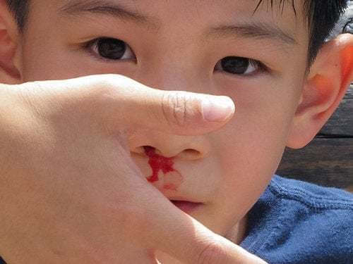 Sangue dal naso