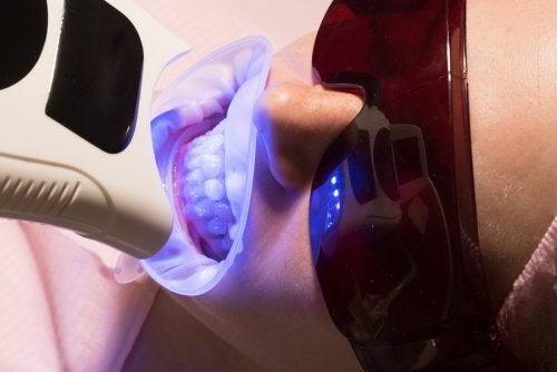 Sbiancamento dei denti con laser