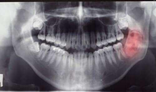 Tumori alla mandibola: tipi e diagnosi