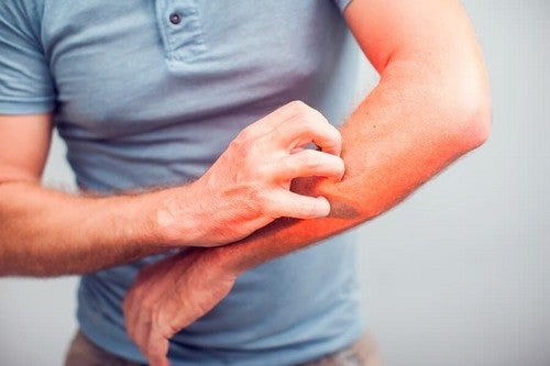 Calmare il prurito e l'irritazione in modo naturale