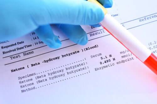 Analisi del sangue per valutare la glicemia.