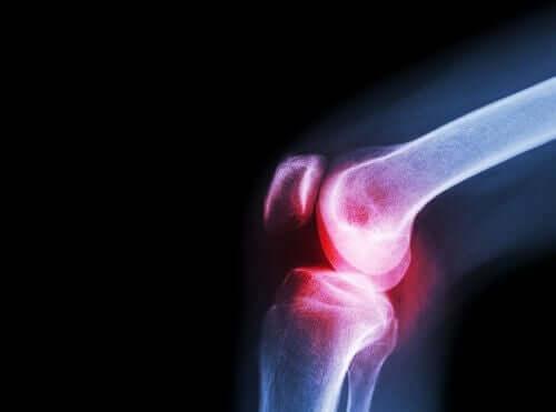 Artrite nel ginocchio a causa del lupus eritematoso.