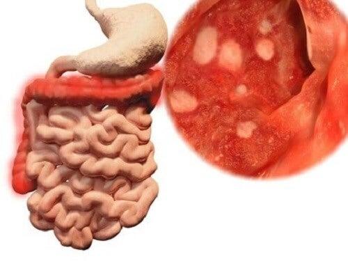 Batterio presente nell'intestino causato da intossicazione alimentare.