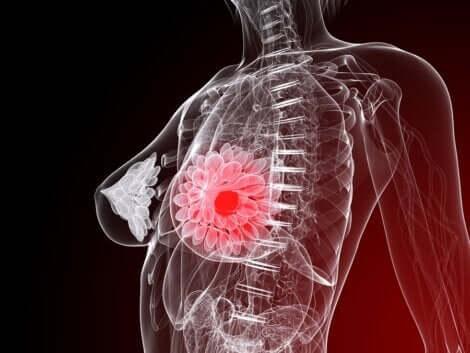 Cause del carcinoma mammario.
