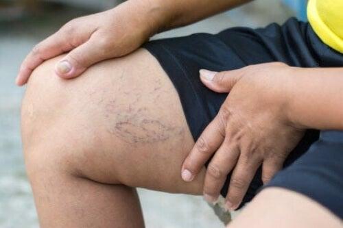 Vene varicose sulla gamba di una donna.