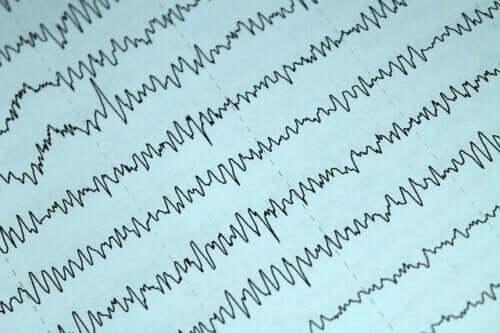 Allattamento al seno ed epilessia: come comportarsi?
