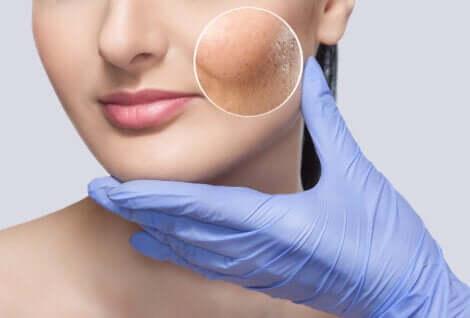 Dermatologo che analizza il viso di una donna prima di eseguire il soft lift