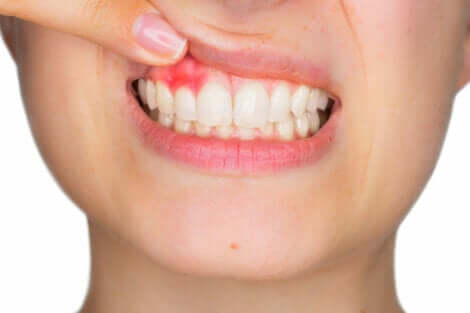 Donna con bocca aperta mostrando una gengivite.