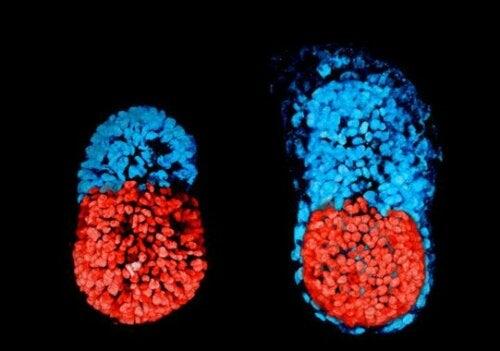 Il fetus in fetu si manifesta prima della formazione dell'embrione.
