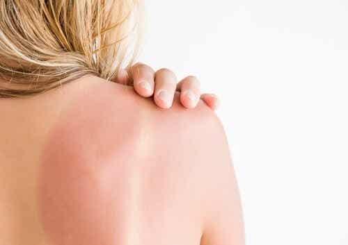 Eritema solare: prevenzione e trattamento