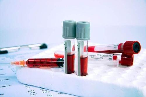 Esami del sangue per diagnosticare l'anemia.