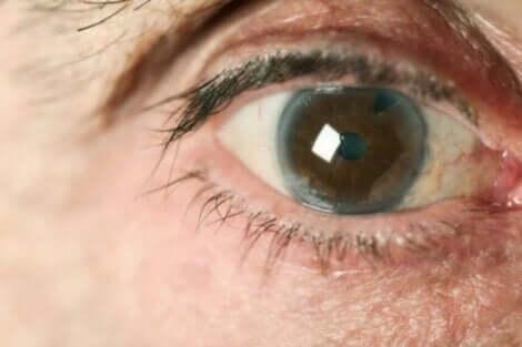 Paziente con glaucoma.