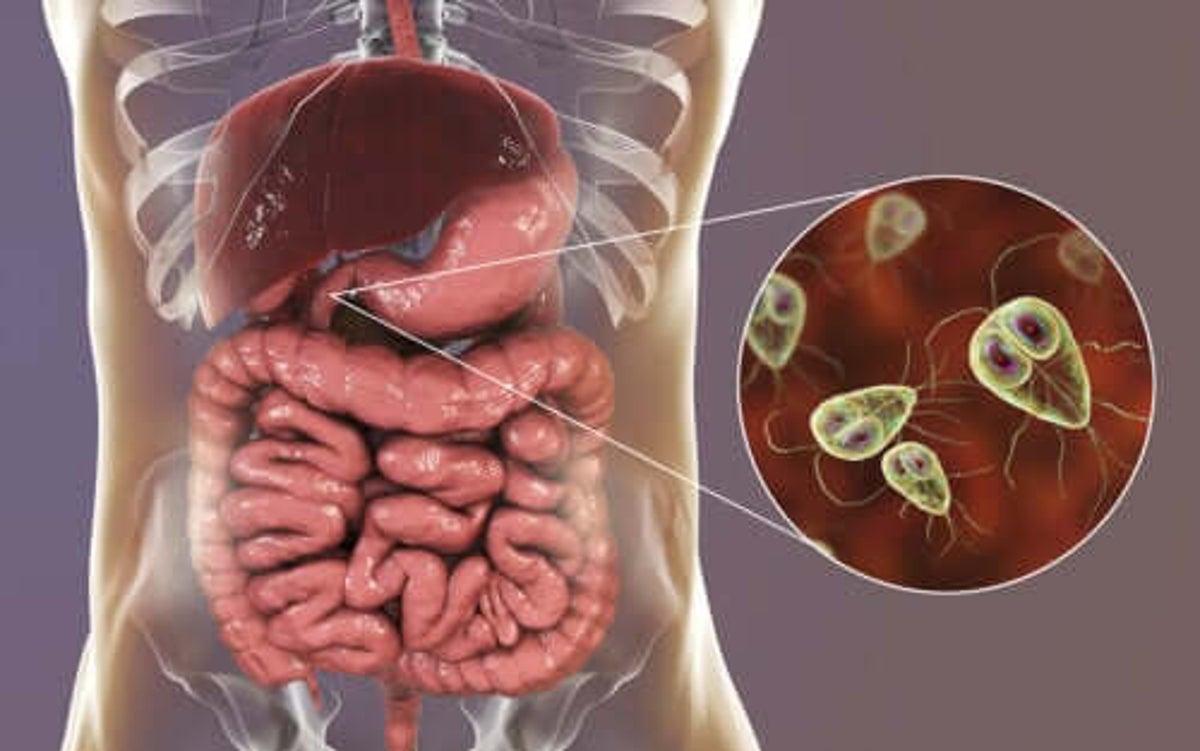 trattamento giardia uomo enterobiasis behandeling