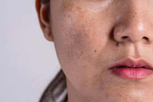 Iperpigmentazione: quali sono le cause?