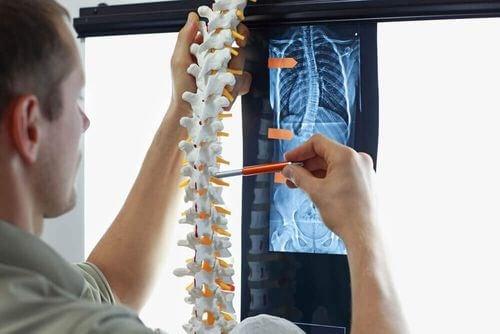 Medico che osserva la radiografia di una colonna vertebrale con scoliosi.