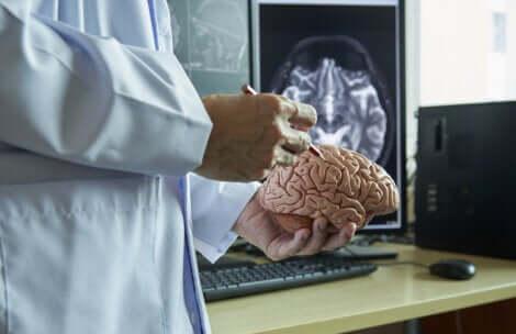 Medico con in mano modellino del cervello.