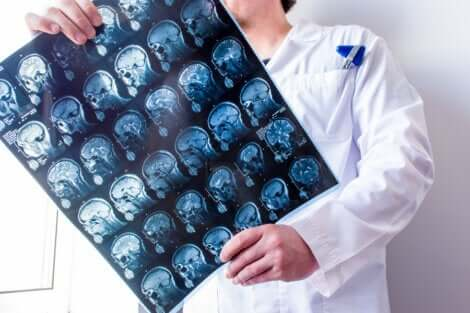 Medico controlla TAC del cervello.