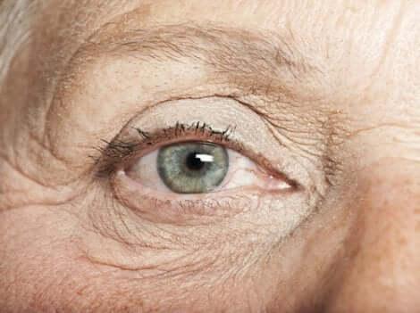Nevi oculari in una persona dalla carnagione chiara.