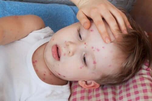 Orticaria nei bambini: come intervenire?