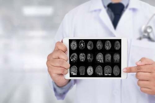 Radiografia del cervello.