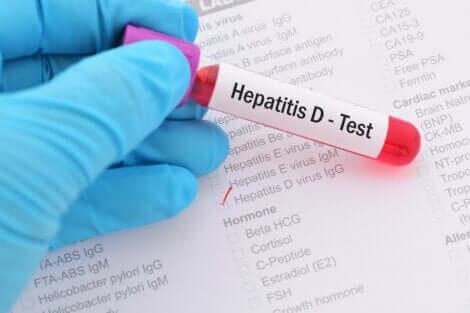 Analisi del sangue per rilevare l'epatite D.