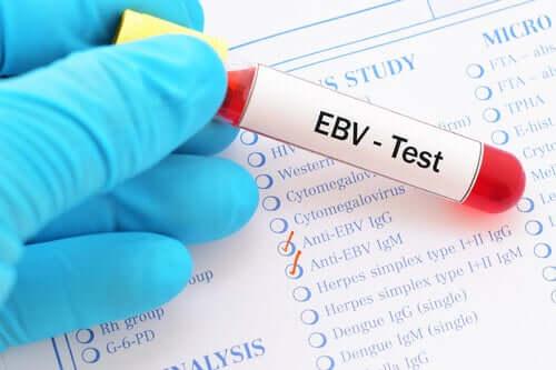 Analisi del virus di Epstein-Barr.