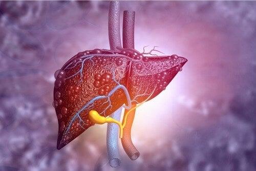 Alimentazione in caso di cirrosi al fegato.
