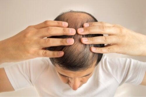 Uomo con alopecia androgenetica.