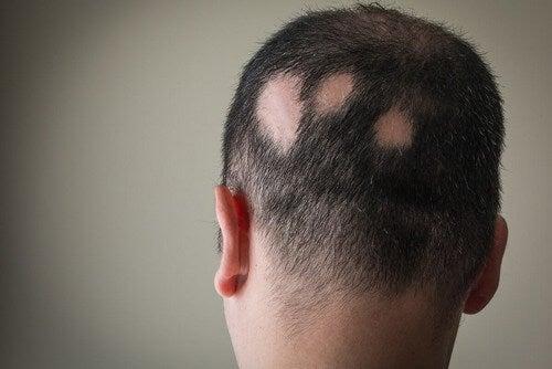Uomo con alopecia areata.