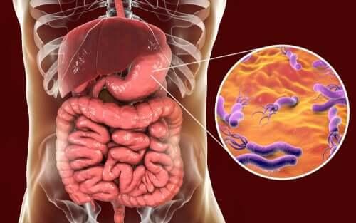 Batteri nell'intestino ed Helicobacter pylori.