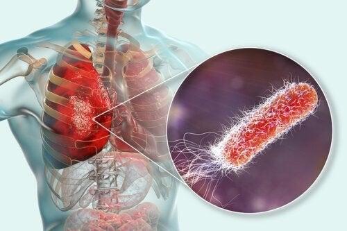 Batteri nei polmoni: cause, sintomi e trattamento