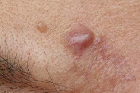 Le cisti epidermoidi sono piccoli rigonfiamenti cutanei.