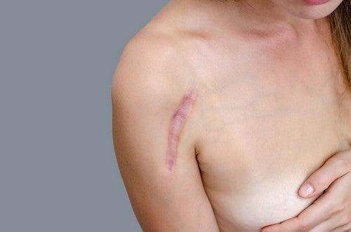 Donna con cicatrice.
