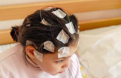 Elettroencefalogramma per diagnosticare l'epilessia infantile.