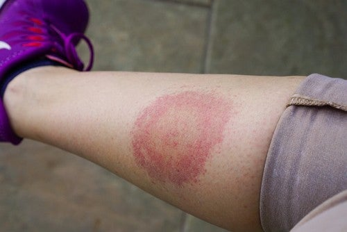La malattia di Lyme provoca uno sfogo cutaneo.