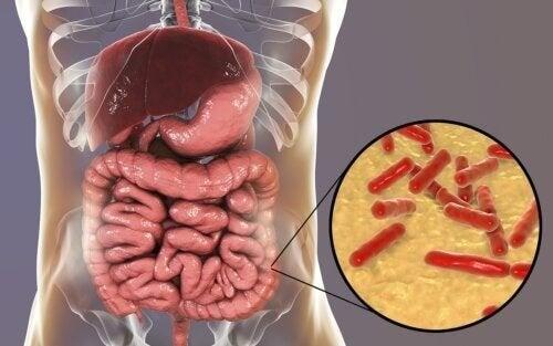 Flora intestinale alterata: quali sono i sintomi?