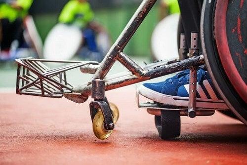 Paralisi causata dalla poliomielite.