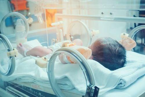 Neonato in incubatrice.