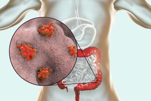 Malattie da protozoi: di cosa si tratta?