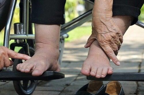 Trattamento del piede diabetico: cosa fare?