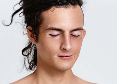Ragazzo con vitiligine sul viso.