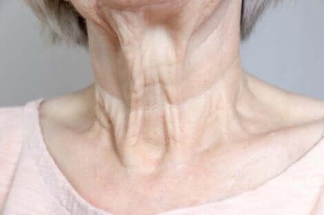 Donna con rughe del collo.