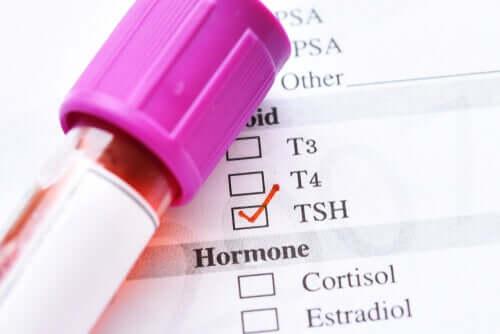 TSH basso: quali sono le cause e i sintomi?