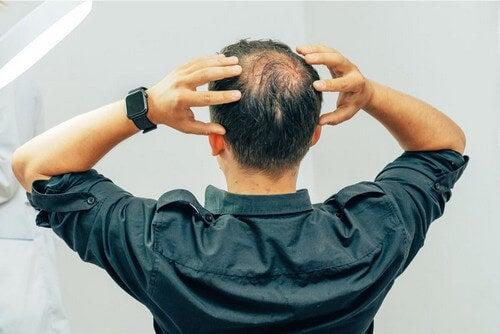 I diversi tipi di alopecia.