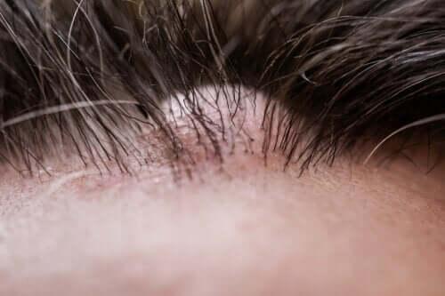 Il dermatofibroma: caratteristiche e cura